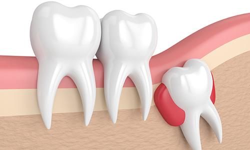 Dentiste Mitry-Mory